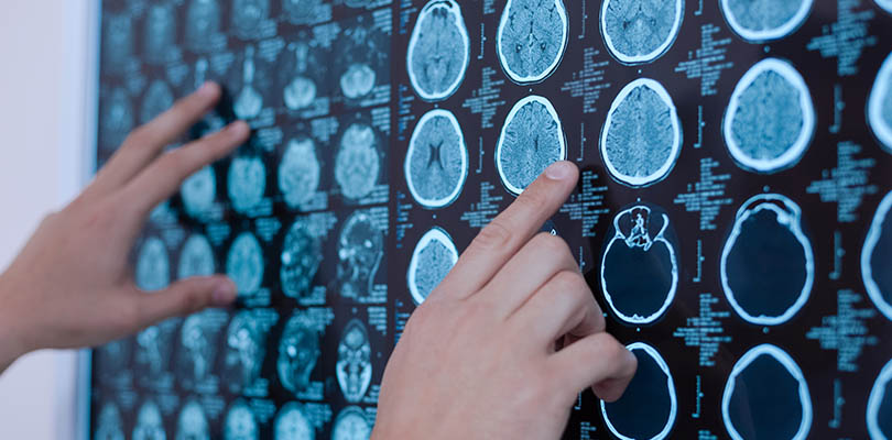 Brain CT scans are on a backlight